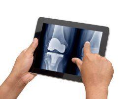 diz protez ameliyatı ne kadar sürer