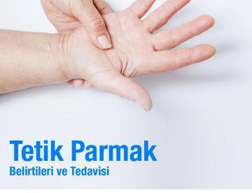 tetik parmak belirtileri ve tedavisi